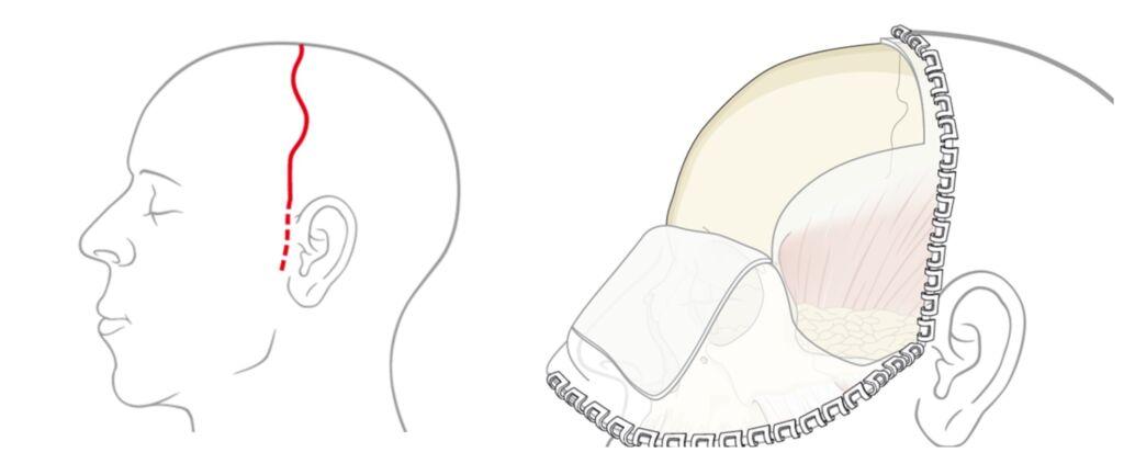 FOTO 3 ACESSO CORONAL Primeira cirurgia de reconstrução facial de alta complexidade é realizada em Guanambi